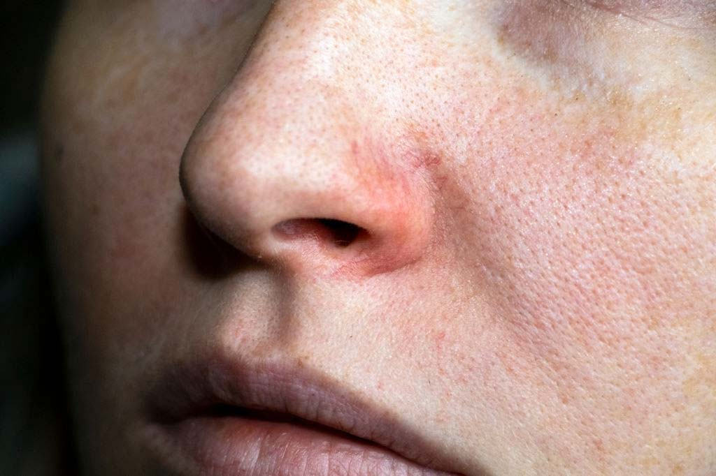 Dry skin around nose
